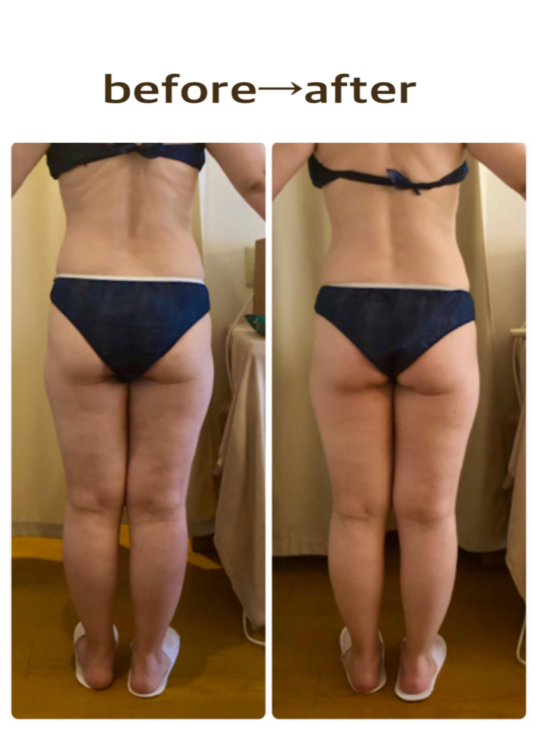 before-after(detox)